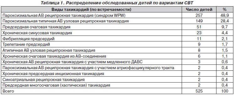 пароксизмальная ав узловая тахикардия: