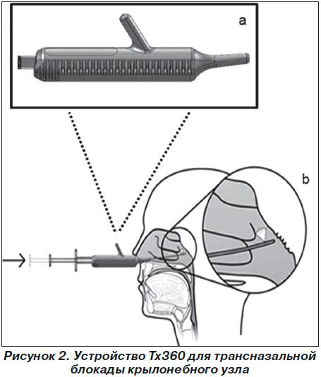 Что делать если резко поднялось давление и болит голова