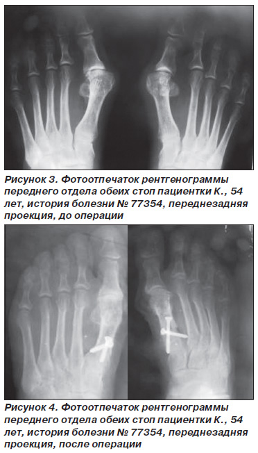 Коррекция поперечного свода стопы - Forefoot ru