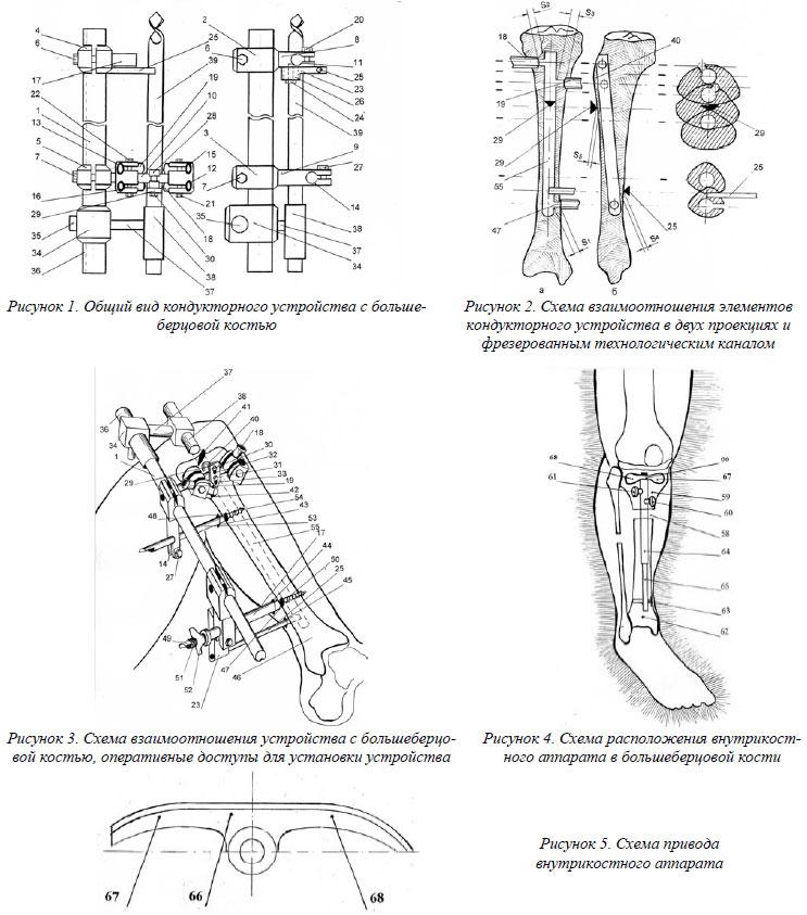 На рис.5 – схема привода