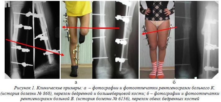 Плохо срастается кость после перелома