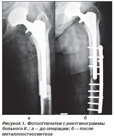 Перипротезный перелом бедренной кости