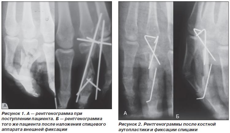 Микрохирургия ложные суставы узи коленного сустава в ростове на дону цена