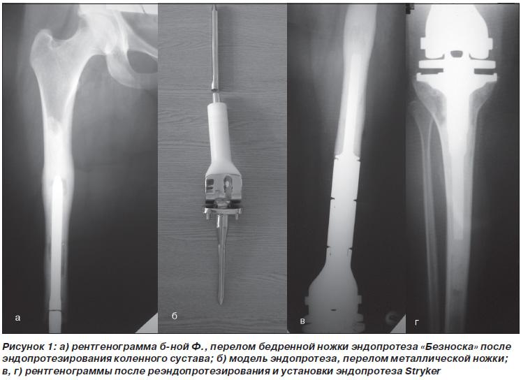 Фиброзная гистиоцитома коленного сустава домашнее средство от боли в суставах