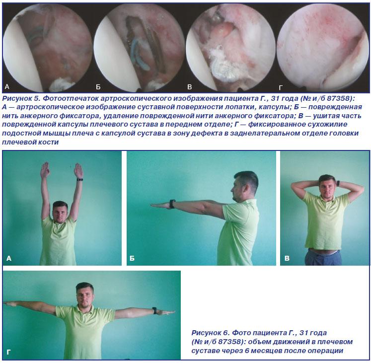 Книга операции на плечевом суставе суставные боли в ногах
