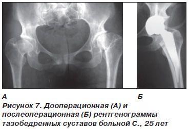 Осложнения при тэп тазобедренного сустава сустава-лфк