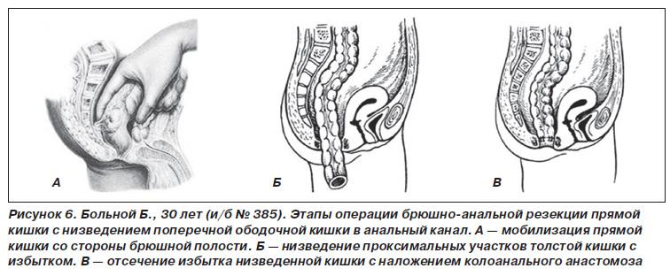bryushno-analnoy-rezektsii-s-nizvedeniem-sigmovidnoy-kishki