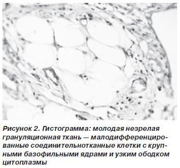 Анализ спермы эякулята Спермограмма  Причины симптомы