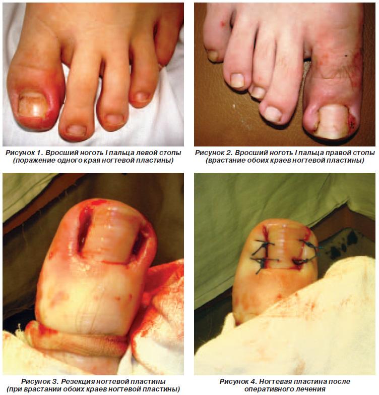 Загноение пальчика у ребенка как лечить