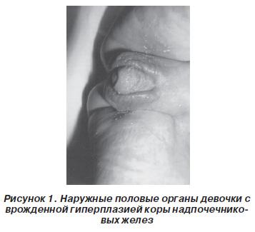 Увеличенный клитор при вдкн фото фото 678-655