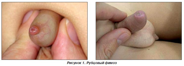 методика лечения от паразитов н а семеновой