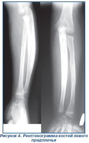 Рентген локтевого сустава в 106 поликлиннике провалился тазобедренный сустав