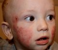 Результаты терапии атопического дерматита у детей с использованием препарата левоцетиризина гидрохлорид
