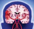 Какой ингибитор АПФ назначить   для вторичной профилактики инсульта?