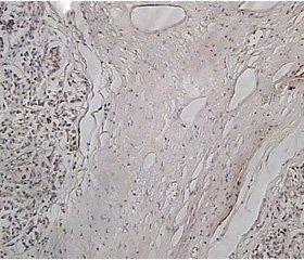 Interrelation of fibrosis and pancreatic hypoxia in pathogenesis of chronic pancreatitis