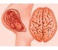 Гіпоксично-ішемічна енцефалопатія у доношених новонароджених: фактори ризику та їх вплив на перебіг гострого періоду