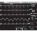 Tachyarrhythmia in neonates.  Clinical case of atrial flutter in a newborn