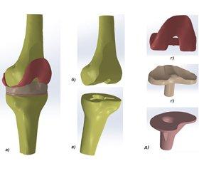 Biomechanical analysis of conditions of the functioning of knee endoprosthesis  in varus deformities in patients with rheumatoid arthritis