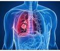 Медикаментозное управление окислительно-восстановительным состоянием организма  при заболеваниях органов дыхания  (часть 4)