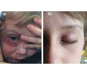 Хронічні алергічні захворювання шкіри — проблема сучасної дерматології