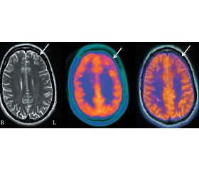 The results of the first experience in the use of positron emission tomography in the Republic of Belarus for the diagnosis of epilepsy