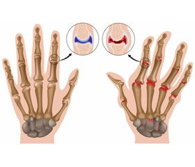 Juvenile arthritis: etiology, рathogenesis, modern aspects  (review of the literature)