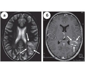 Atipical multiple sclerosis, Marburg variant: a case report and review