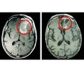 Rare case of chiasm glioma in woman with hypogonadotropic hypogonadism and obesity
