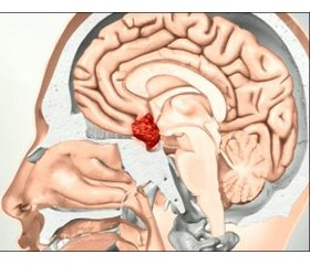 Giant pituitary adenomas: prevalence, features of diagnosis clinical course