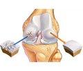 Инъекции кортикостероидов при остеоартрозе бесполезны