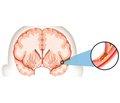 Обзор руководства Американской ассоциации сердца/Американской ассоциации инсульта по раннему ведению пациентов с острым ишемическим инсультом