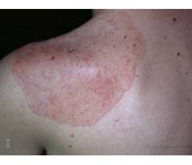 Difficulties in the diagnosis and therapeutic approach in autoimmune polyglandular syndrome type 2. A clinical сase