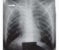 Plastic bronchitis: a clinical case