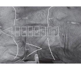 Experimental substantiation of the volume of a local anesthetic during quadratus lumborum block