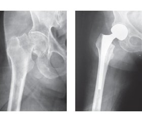 The main criteria for predicting dislocation of the endoprosthesis head  in patients with femoral neck fractures after unipolar hip arthroplasty