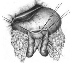 A clinical case of gastroenterostomy with Braun anastomosis under epidural anesthesia