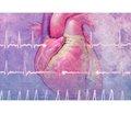 Обзор рекомендаций AHA/ACC/HRS по ведению пациентов с желудочковой аритмией и профилактике внезапной сердечной смерти — 2017. Часть 2
