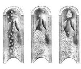 Практичні аспекти тромбопрофілактики в пацієнтів післявеликих хірургічних втручань нагепатопанкреатодуоденальній зоні