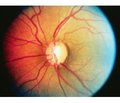 An analysis of the effectiveness of Travinor®in the treatment of primary open-angle glaucoma