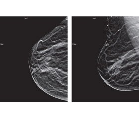 Modern methods of medical imaging in the diagnosis and screening of breast cancer