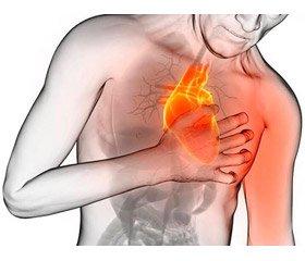 Болевой синдром при приступе стенокардии  и роль быстродействующих нитратов:  взгляд специалиста