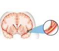 Гострий ішемічний інсульт у жінок: деякі особливості інтенсивної терапії