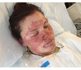 Clinical case of successful treatment of neuroleptic malignant syndrome on the background of acute toxic-allergic reaction degree IV