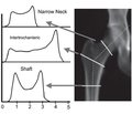 Reference indices of hip structural analysis in Ukrainian women