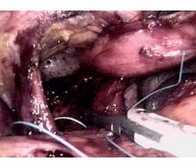 The experience of surgical treatment of hiatal hernia with laparoscopic access