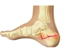 Клінічні аспекти діагностики  та лікування внутрішньосуглобових переломів п'яткових кісток