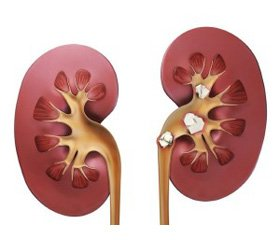 The choice of nephrectomy method in patients with terminal hydronephrosis