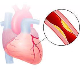 Diagnosis of the presence of myocardial stunning phenomenon in clinical settings using instrumental methods of research