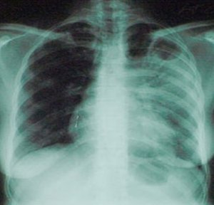 Impact of drug resistance on the tuberculosis treatment outcome