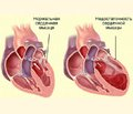 Cognitive impairment in patients with chronic heart failure  and reduced left ventricular ejection fraction on the background  of hypertension